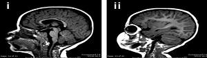 microcefalia_DESTAQUE